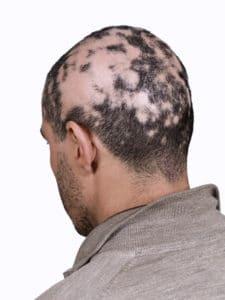 Alopecia Aretea